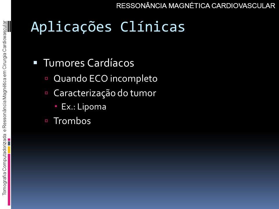 Aplicações Clínicas Tumores Cardíacos Quando ECO incompleto