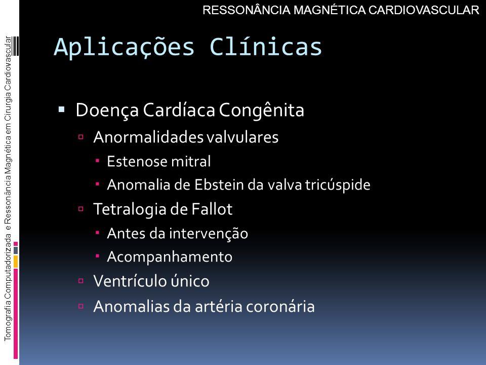 Aplicações Clínicas Doença Cardíaca Congênita Anormalidades valvulares