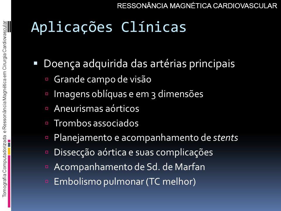 Aplicações Clínicas Doença adquirida das artérias principais