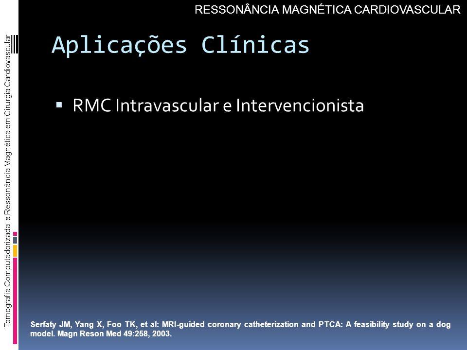 Aplicações Clínicas RMC Intravascular e Intervencionista