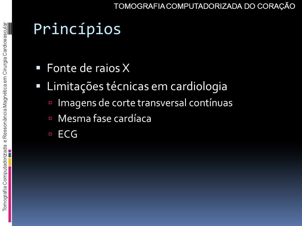 Princípios Fonte de raios X Limitações técnicas em cardiologia