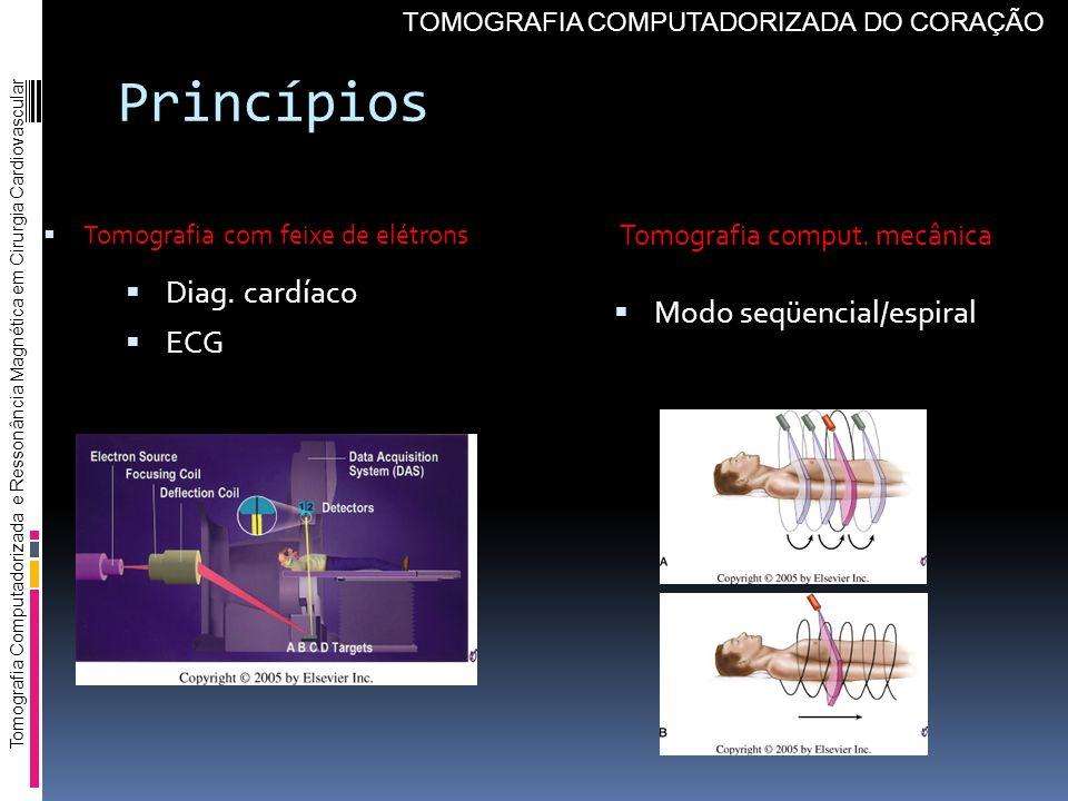 Princípios Diag. cardíaco ECG Modo seqüencial/espiral