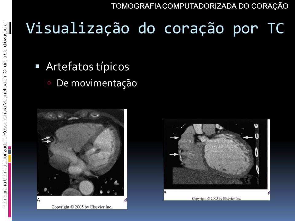 Visualização do coração por TC