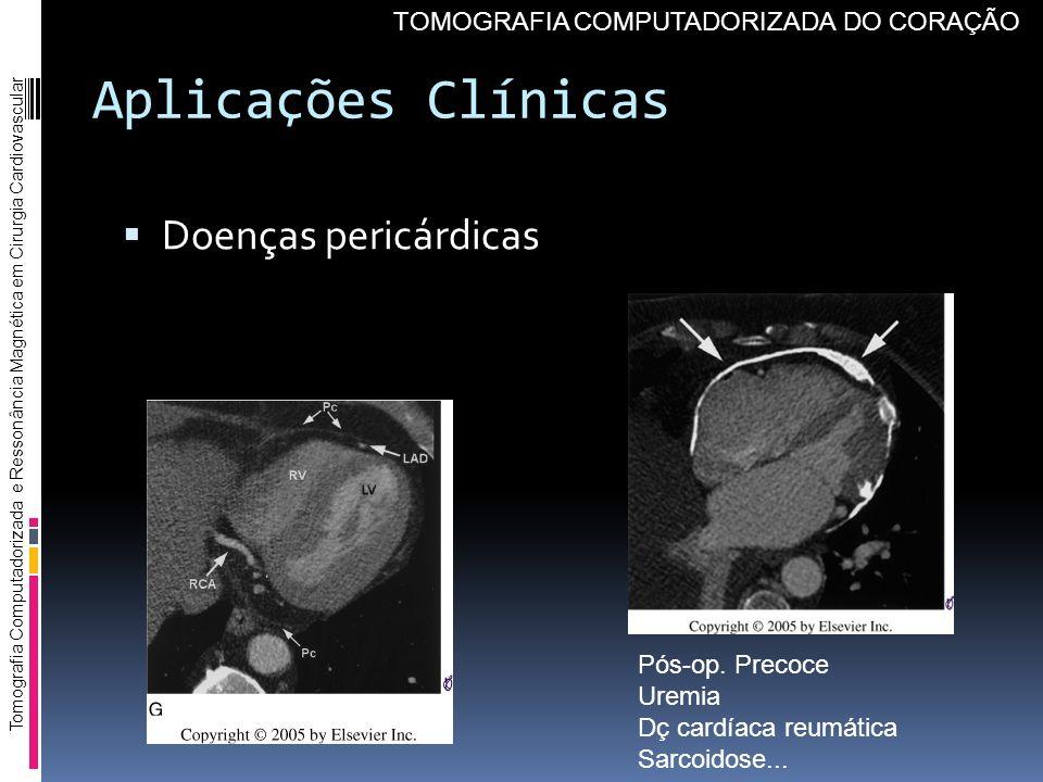 Aplicações Clínicas Doenças pericárdicas