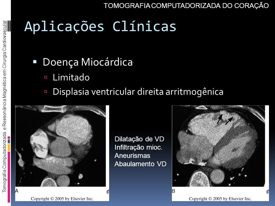 Aplicações Clínicas Doença Miocárdica Limitado