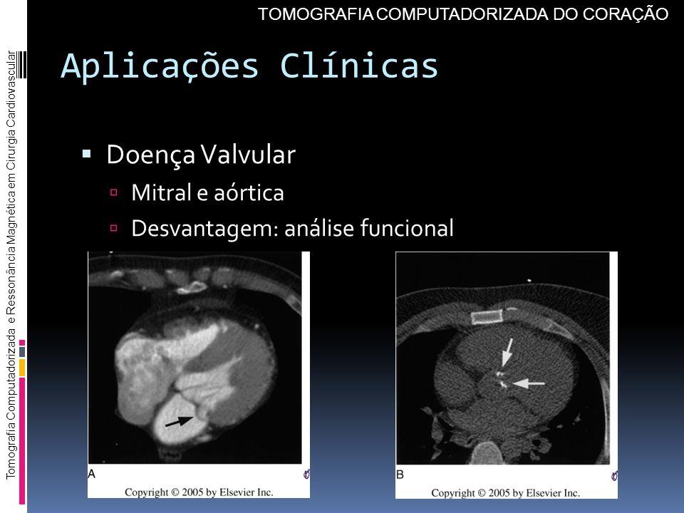 Aplicações Clínicas Doença Valvular Mitral e aórtica
