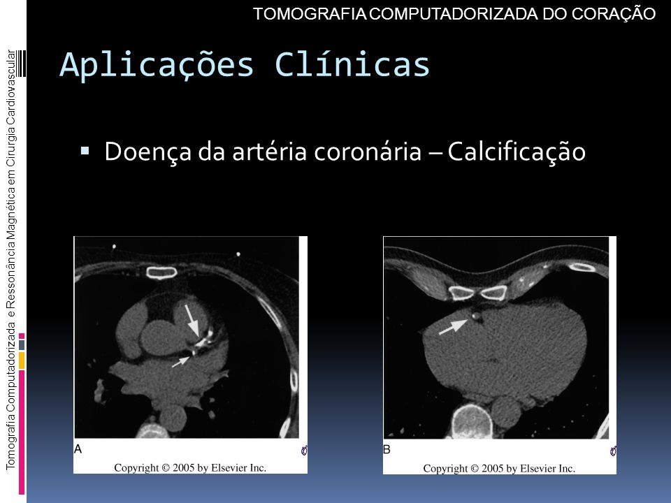 Aplicações Clínicas Doença da artéria coronária – Calcificação