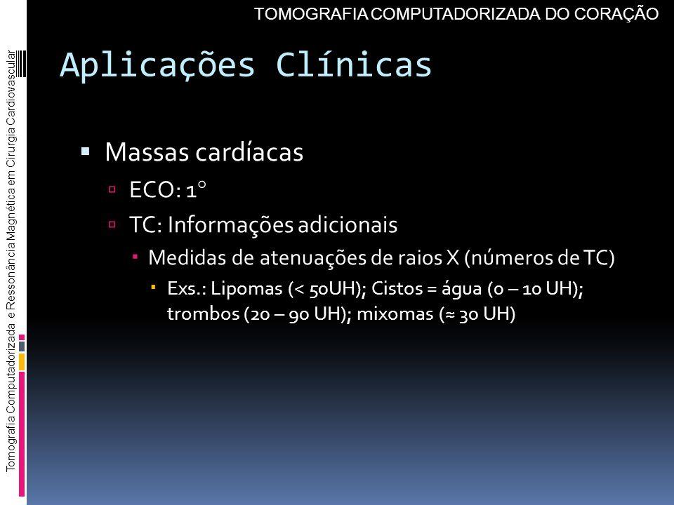 Aplicações Clínicas Massas cardíacas ECO: 1