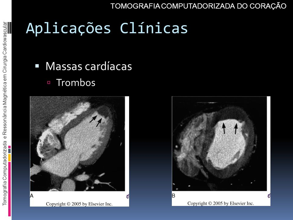 Aplicações Clínicas Massas cardíacas Trombos