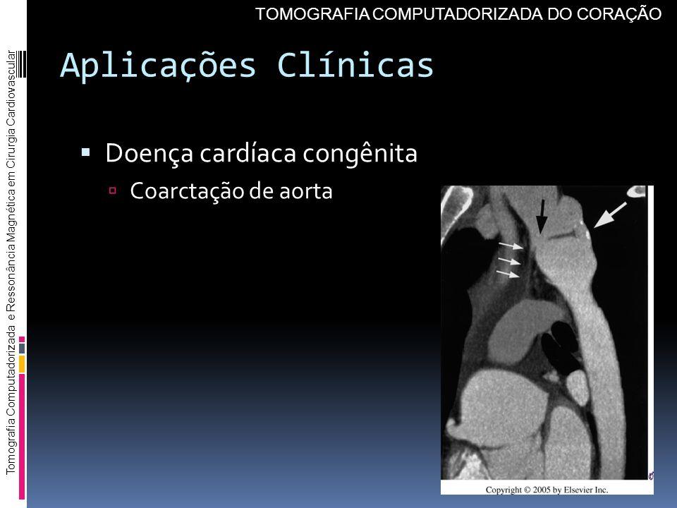 Aplicações Clínicas Doença cardíaca congênita Coarctação de aorta
