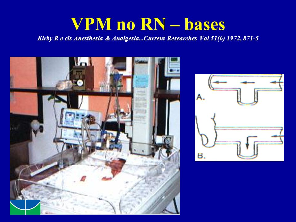 VPM no RN – bases Kirby R e cls Anesthesia & Analgesia