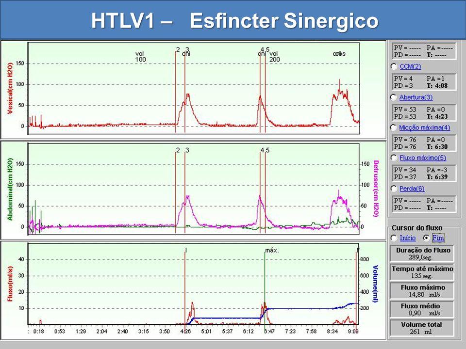 HTLV1 – Esfincter Sinergico