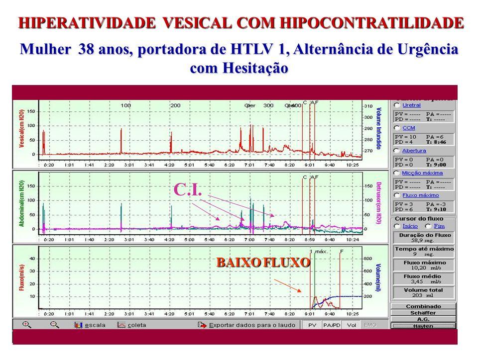 HIPERATIVIDADE VESICAL COM HIPOCONTRATILIDADE