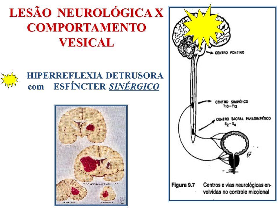 LESÃO NEUROLÓGICA X COMPORTAMENTO VESICAL