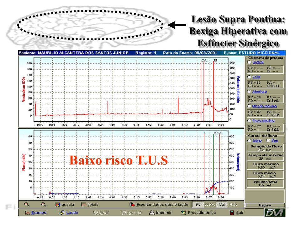 Lesão Supra Pontina: Bexiga Hiperativa com Esfíncter Sinérgico