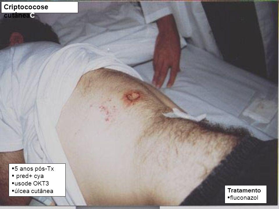 Criptococose cutâneaC