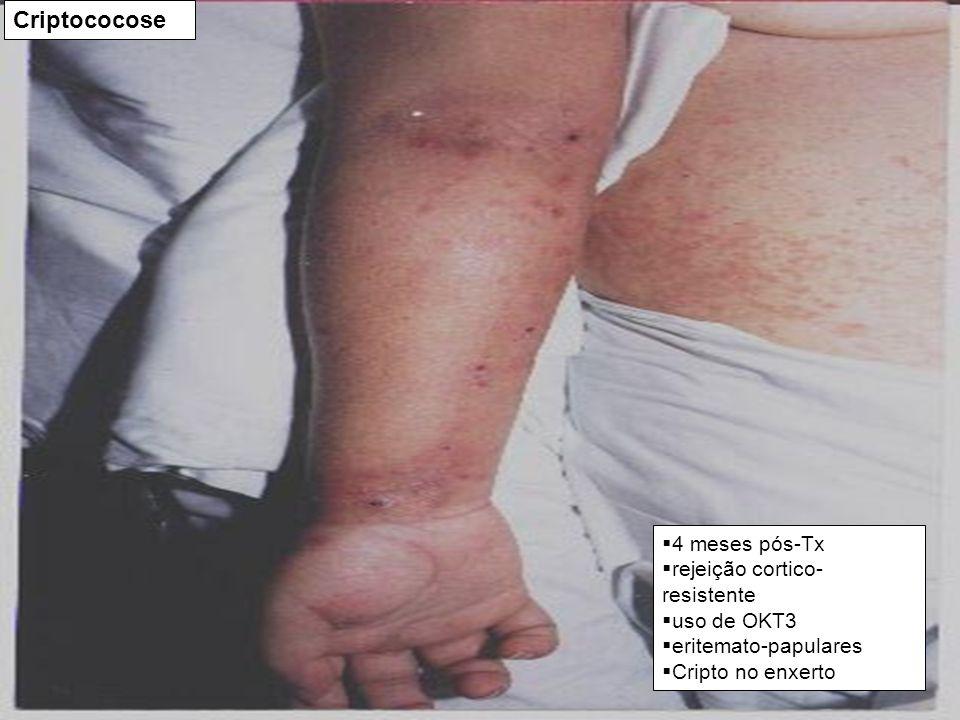 Criptococose 4 meses pós-Tx rejeição cortico-resistente uso de OKT3