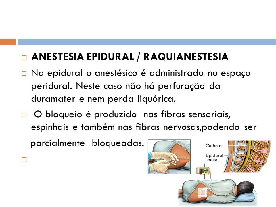 ANESTESIA EPIDURAL / RAQUIANESTESIA