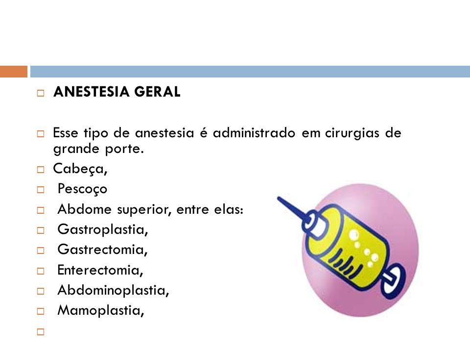 ANESTESIA GERAL Esse tipo de anestesia é administrado em cirurgias de grande porte. Cabeça, Pescoço.