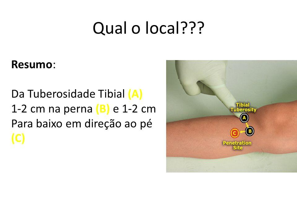 Qual o local Resumo: Da Tuberosidade Tibial (A)