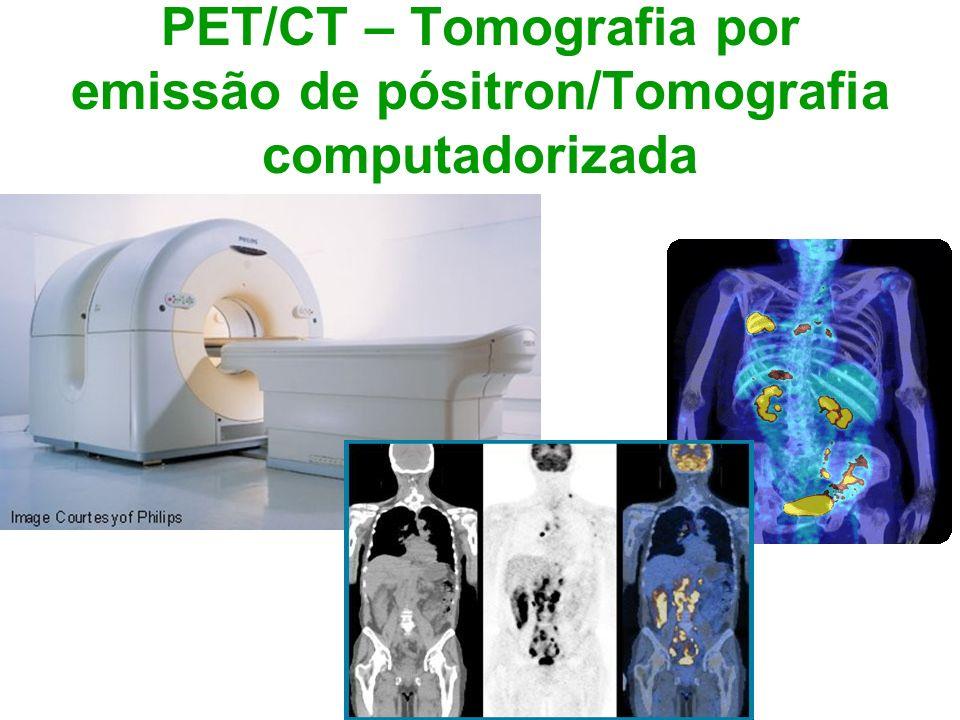 PET/CT – Tomografia por emissão de pósitron/Tomografia computadorizada