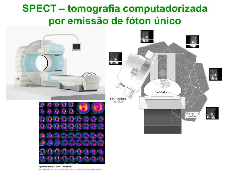 SPECT – tomografia computadorizada por emissão de fóton único