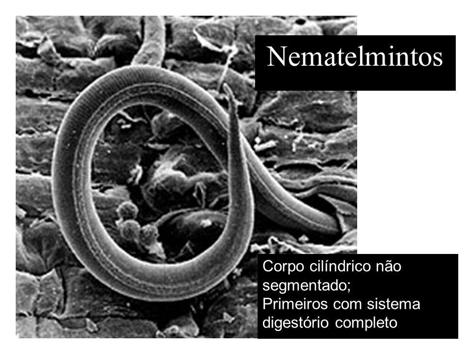 Nematelmintos Corpo cilíndrico não segmentado;
