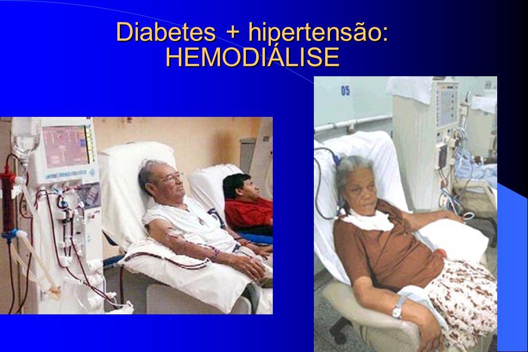 Diabetes + hipertensão: HEMODIÁLISE