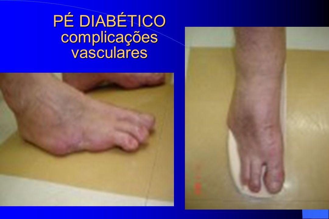 PÉ DIABÉTICO complicações vasculares
