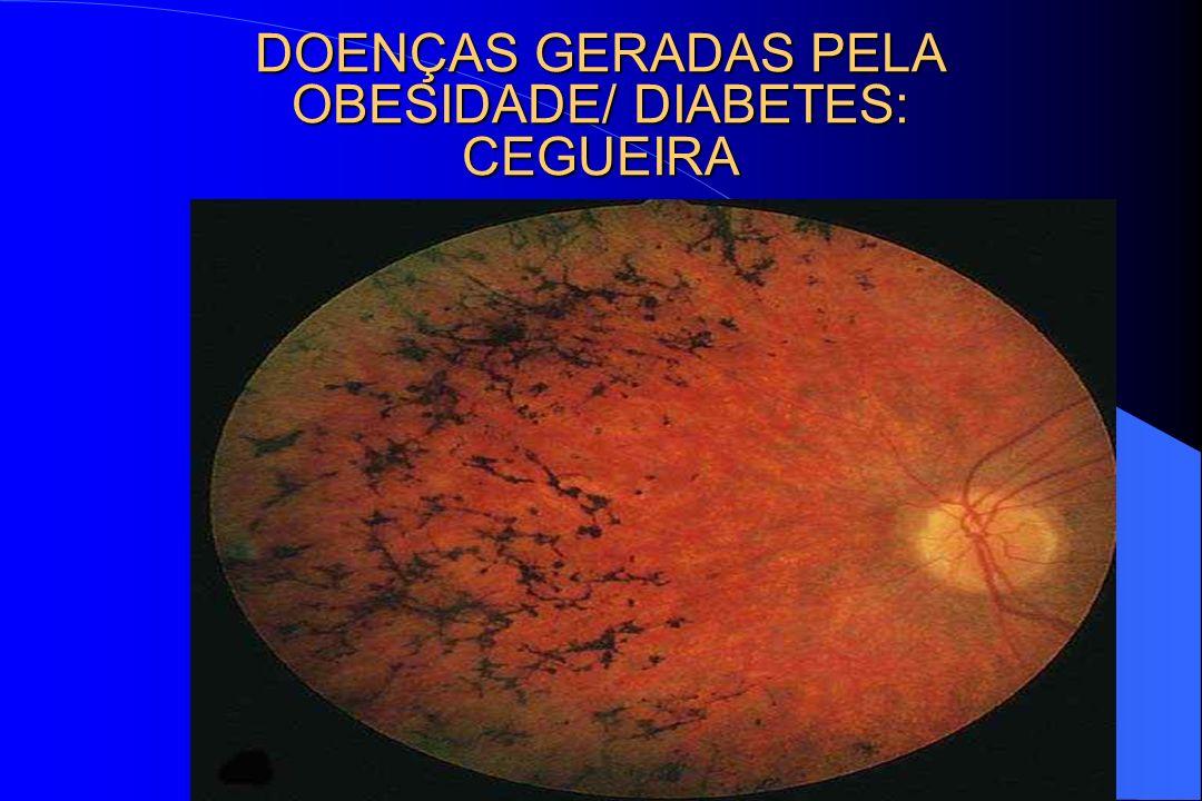 DOENÇAS GERADAS PELA OBESIDADE/ DIABETES: CEGUEIRA