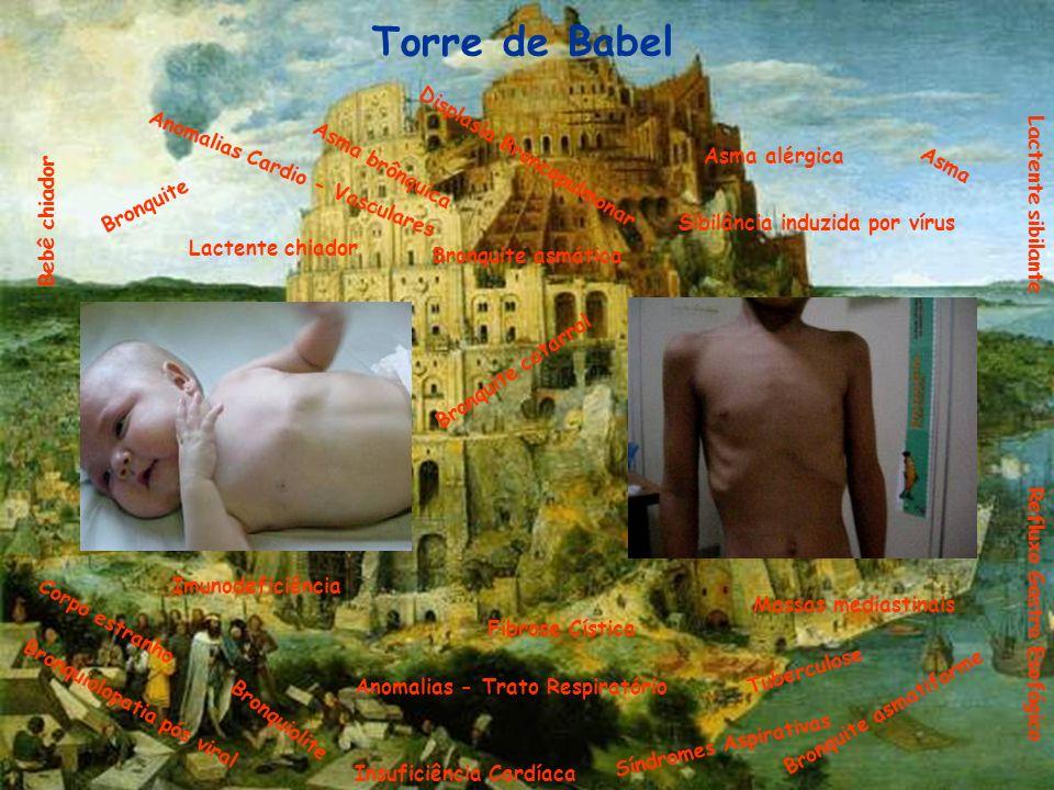 Torre de Babel Displasia Broncopulmonar Asma alérgica Asma brônquica