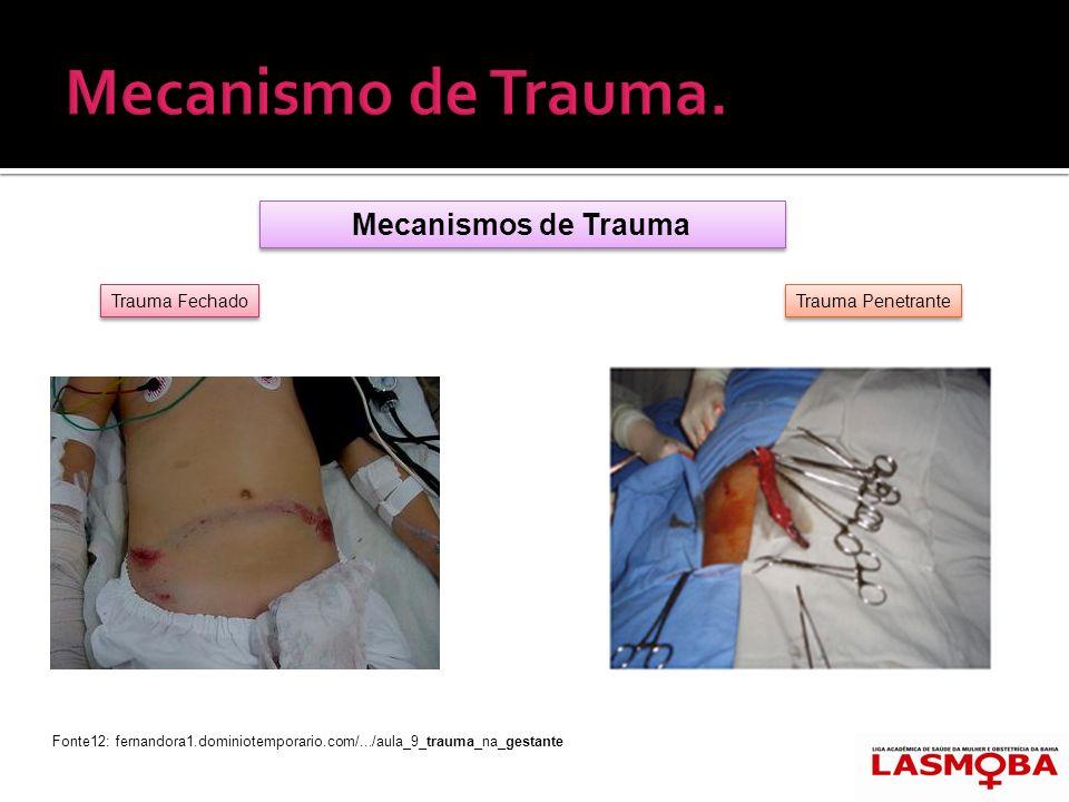 Mecanismo de Trauma. Mecanismos de Trauma Trauma Fechado