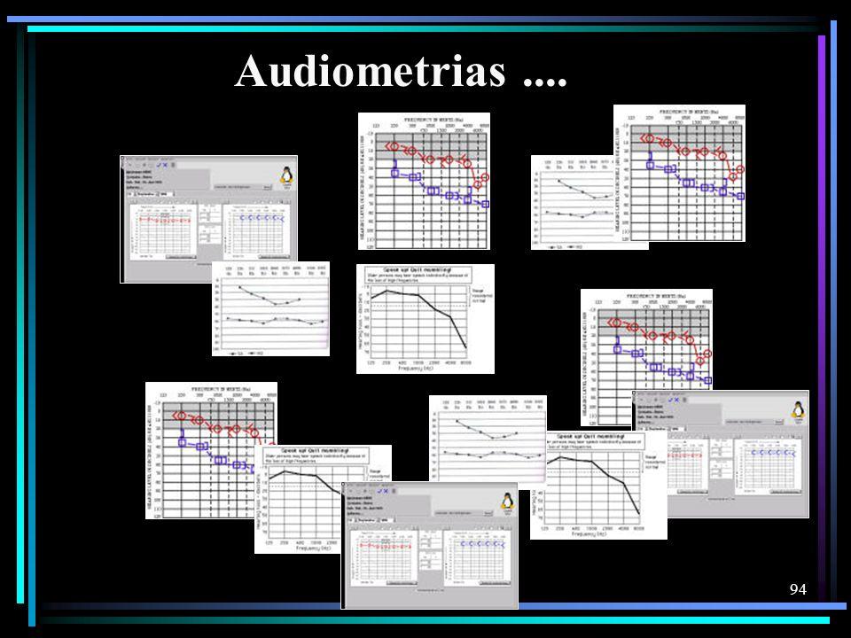 Audiometrias ....