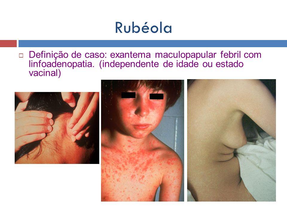 Rubéola Definição de caso: exantema maculopapular febril com linfoadenopatia.