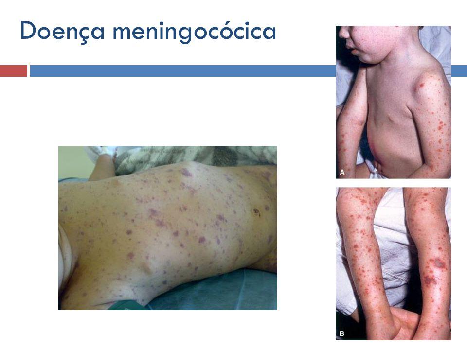 Doença meningocócica