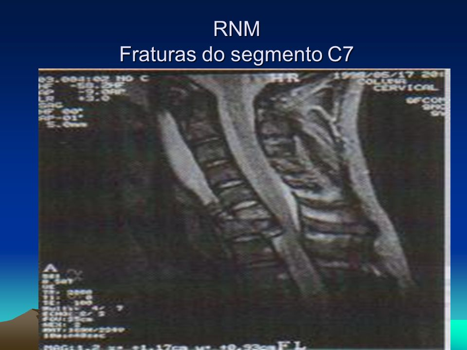 RNM Fraturas do segmento C7
