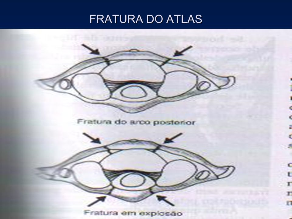 FRATURA DO ATLAS