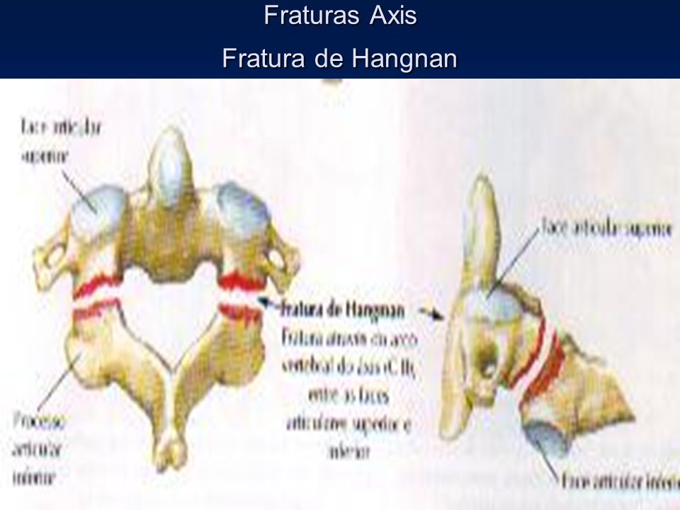Fraturas Axis Fratura de Hangnan