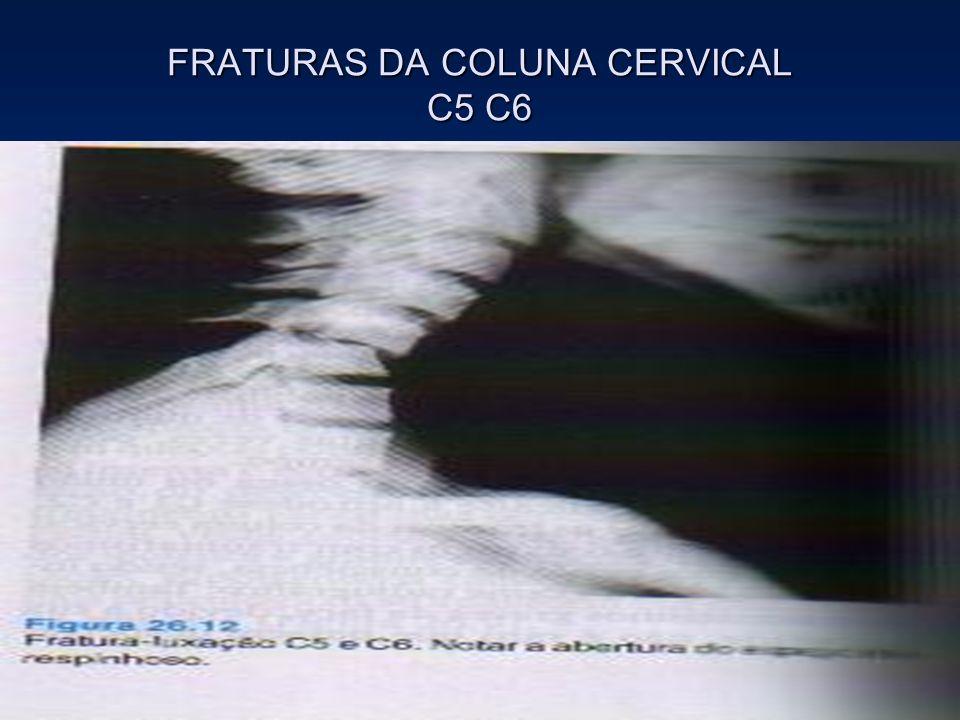 FRATURAS DA COLUNA CERVICAL C5 C6