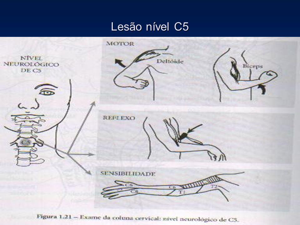Lesão nível C5