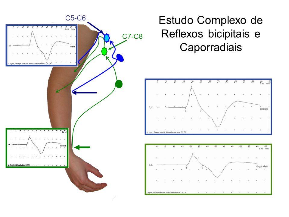 Estudo Complexo de Reflexos bicipitais e Caporradiais