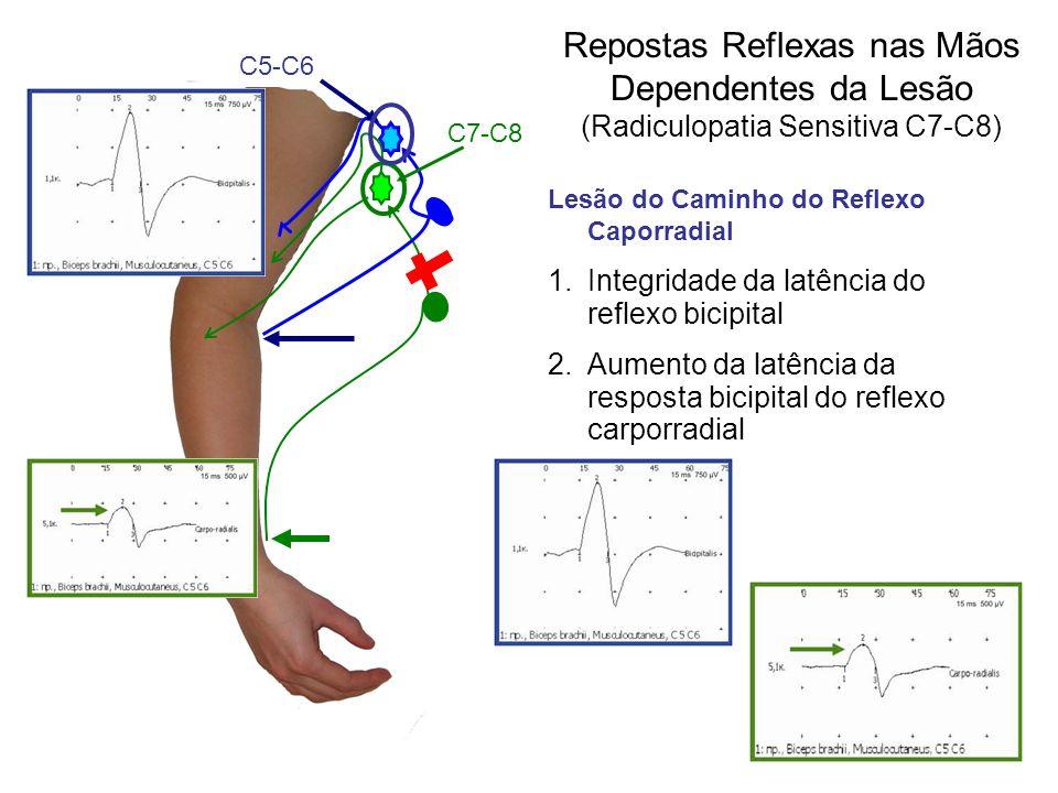 Repostas Reflexas nas Mãos Dependentes da Lesão (Radiculopatia Sensitiva С7-С8)