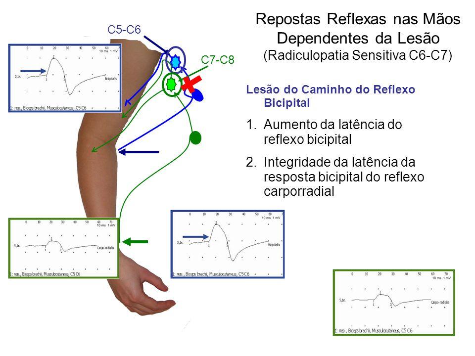 Repostas Reflexas nas Mãos Dependentes da Lesão (Radiculopatia Sensitiva С6-С7)