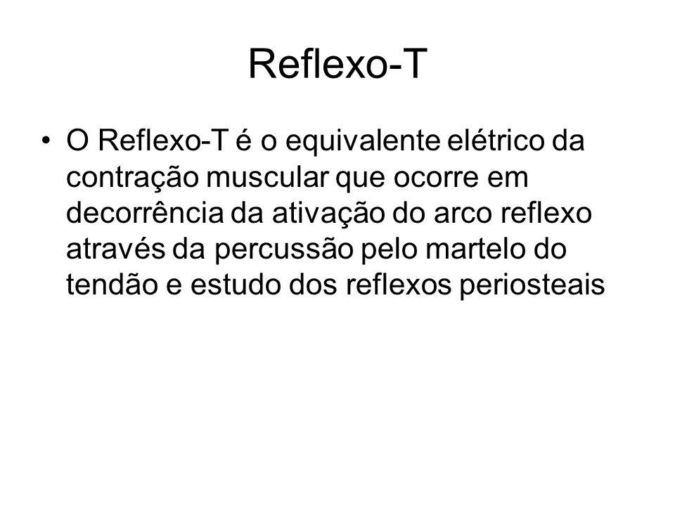Reflexo-T
