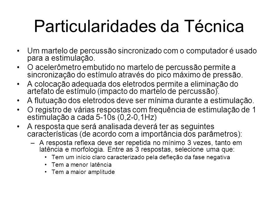 Particularidades da Técnica