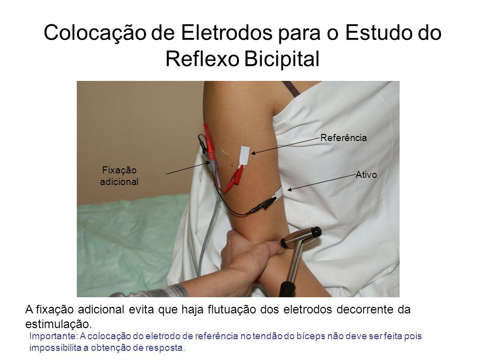 Colocação de Eletrodos para o Estudo do Reflexo Bicipital
