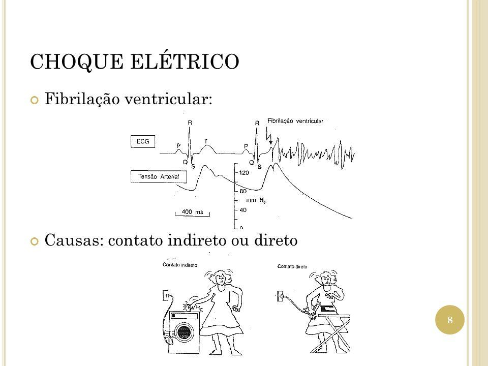 CHOQUE ELÉTRICO Fibrilação ventricular: