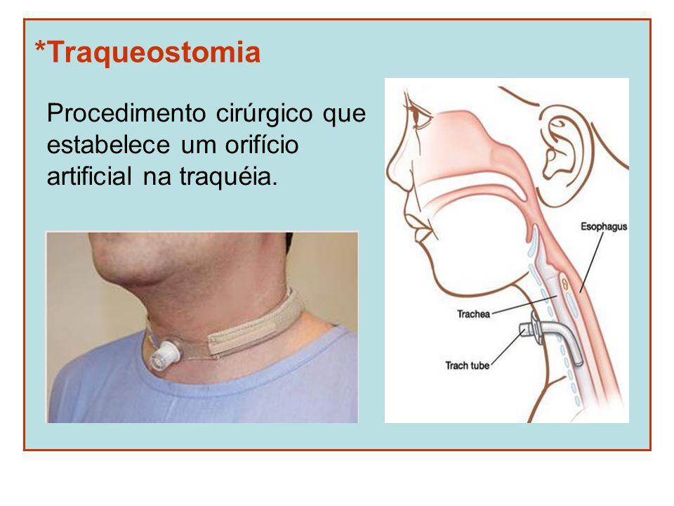 *Traqueostomia Procedimento cirúrgico que estabelece um orifício