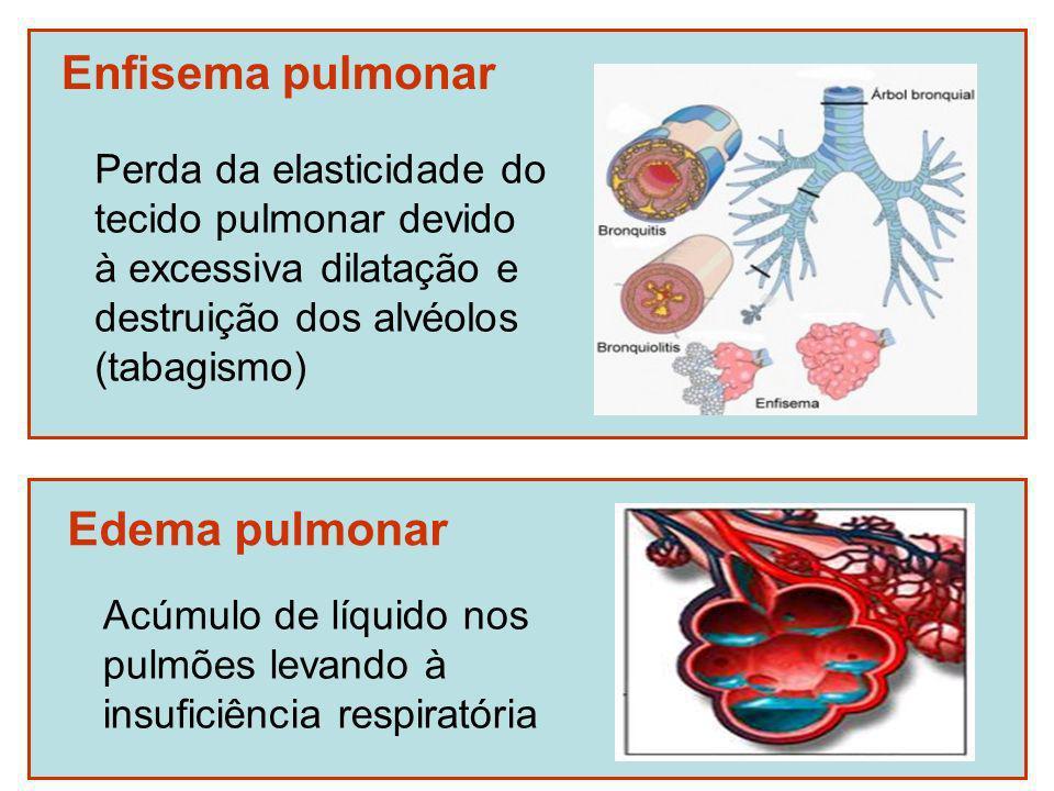 Enfisema pulmonar Edema pulmonar Perda da elasticidade do