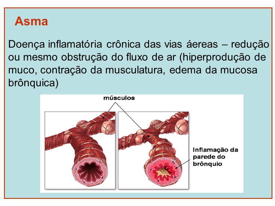 Asma Doença inflamatória crônica das vias áereas – redução